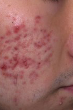 Acne treatment 3 - Before