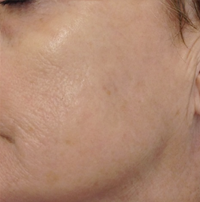 Pigmentation After Picture 2 - Clearskincare