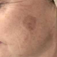 Pigmentation Before Picture 2 - Clearskincare