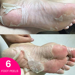 BF™️ - Exfoliating Foot Peel (6 Peels) - Fits Up To Size 15 - Buy 1 Get 2 Free