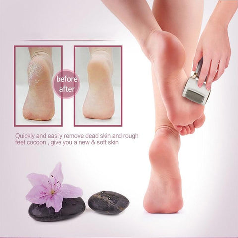 Callus Remover - Rechargeable Pedicure File Shaver Electronic Scrubber Foot Grinding Machine for Dry Feet Hard, Dead, Callused Skin - Baby Feet - Baby Foot™