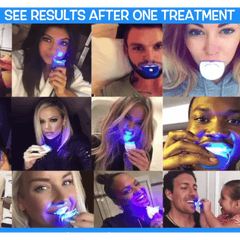 InstaBright™ Home Teeth Whitening Kit Gel LED Light