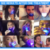 Image of InstaBright™ Home Teeth Whitening Kit Gel LED Light - Baby Feet - Baby Foot™