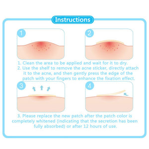 Acne-Free Patch (24 PCS) - Trendiscovery