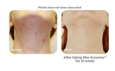 Skin Accumax™ - The Skincare Supply