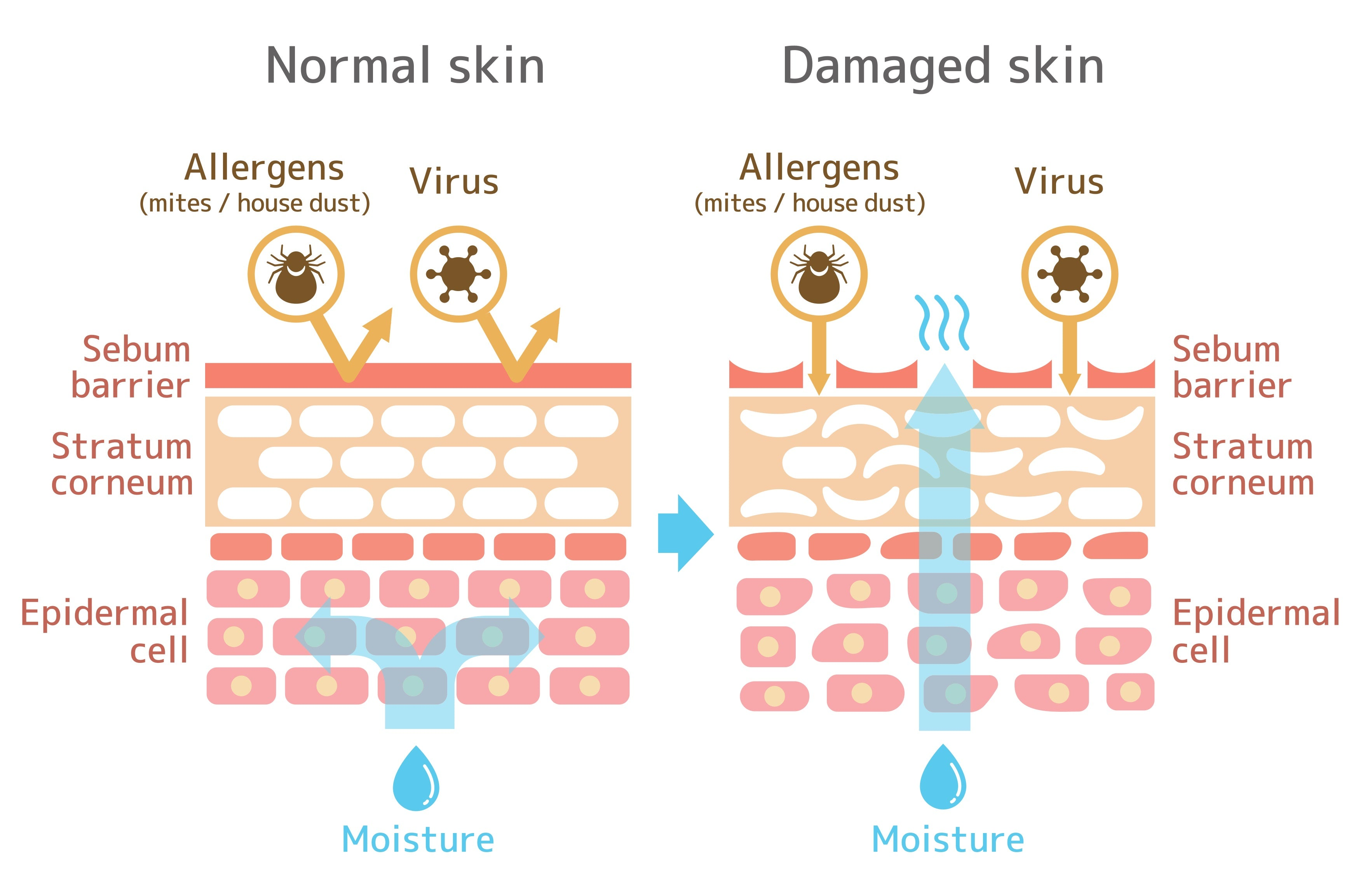How to repair a damaged skin barrier   Skin Library UK