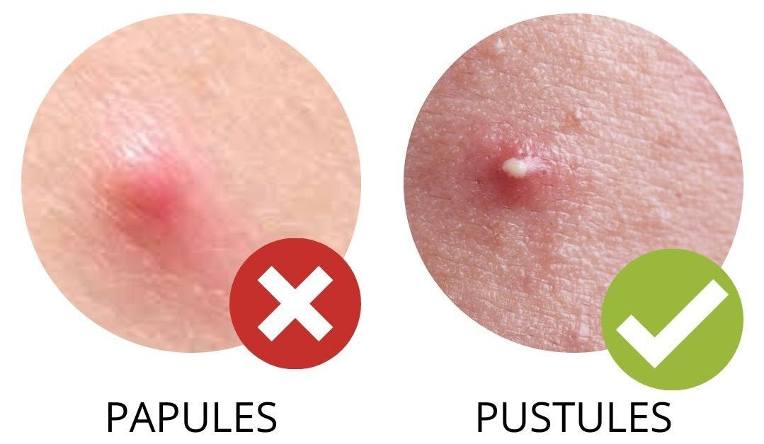 When-to-use-hydrocolloid-pimple-patches