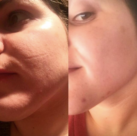 Scar repair with Anoint face oil
