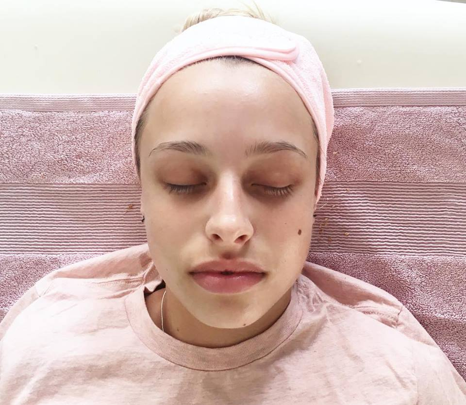 Facial Treatment Gift Voucher