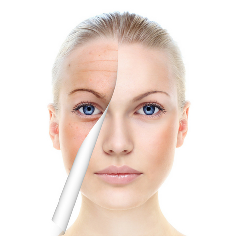 Chemical Peel (VI Peel)*