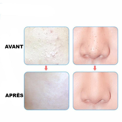 masque-maison-visage-extraction-point-noir-masque-anti-point-noir-maison-visage-anti-bouton-pince-anti-point-noir-anti-acné-soin-visage-efficace-pas-cher