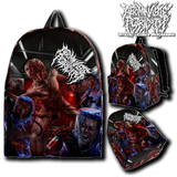 Official Abominable Putridity The Anomalies Of Artificial Origin Slampack - Crowdkill Apparel Death Metal Deathcore Hardcore Slam Merchandise
