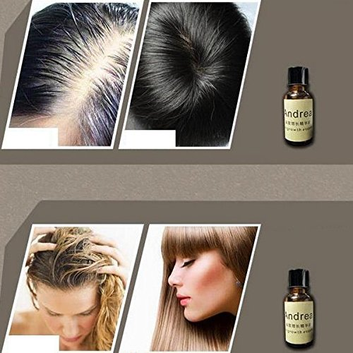 2-Pack  Andrea 20ml Hair Growth Restoration Hair Loss - Buy1More