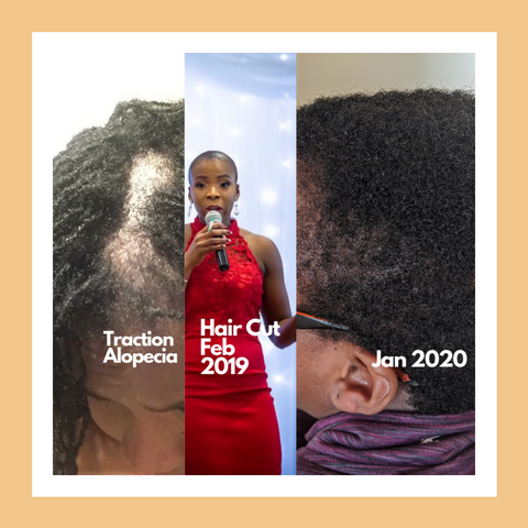 Afro Hair Care Growth Set