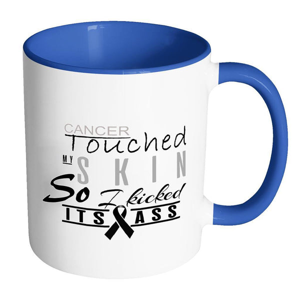 Cancer Touched My Skin So I Kicked Its Ass Melanoma Skin Cancer 7Colors Mug-Drinkware-Accent Mug - Blue-JoyHip.Com