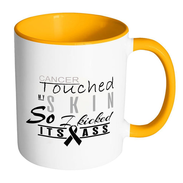 Cancer Touched My Skin So I Kicked Its Ass Melanoma Skin Cancer 7Colors Mug-Drinkware-Accent Mug - Orange-JoyHip.Com