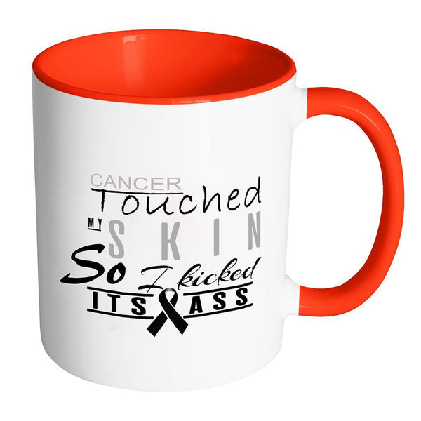 Cancer Touched My Skin So I Kicked Its Ass Melanoma Skin Cancer 7Colors Mug-Drinkware-Accent Mug - Red-JoyHip.Com