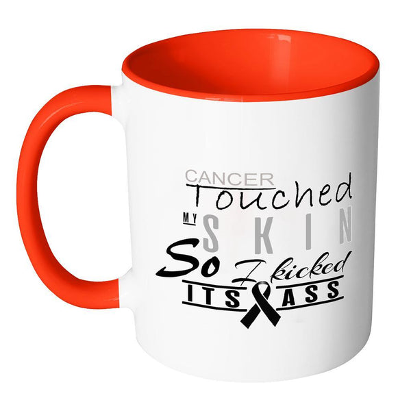 Cancer Touched My Skin So I Kicked Its Ass Melanoma Skin Cancer 7Colors Mug-Drinkware-JoyHip.Com