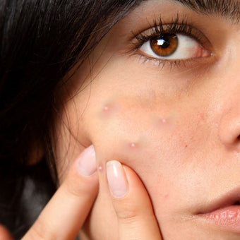 4 Reasons why you should use the beta glucan for acne