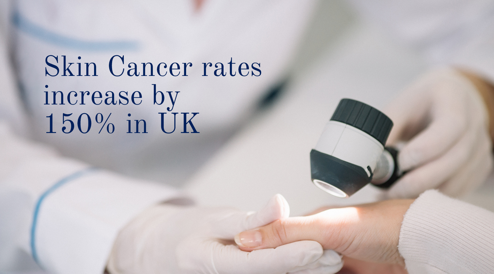 Skin Cancer rates increase 150% in UK