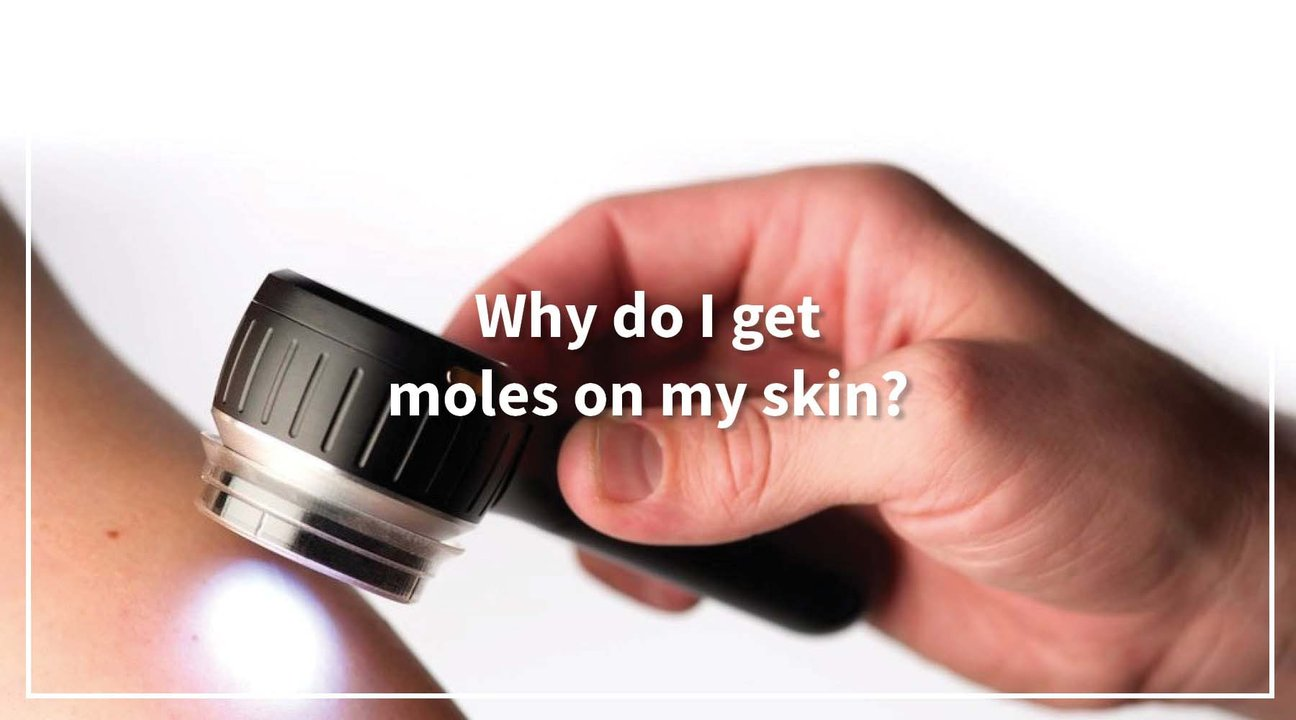 Solbari blog: Why do I get moles on my skin?
