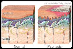 Psoriasis and how SOLBARI sun protective clothing can help
