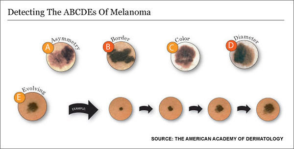 Skin Cancer ABCDE