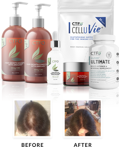 """""""Keyword"""" """"best product for thinning hair male"""" """"best product for hair growth fast"""" """"best products for hair growth and thickness"""" """"best hair loss treatment for female"""" """"best hair loss treatment for african american male"""" """"best medicine for hair fall and regrowth"""" """"dermatologist recommended hair growth products"""" """"hair loss products for men"""""""