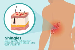 SHINGLES, WHO SHOULD GET A SHINGRIX SHOT AGAINST IT?