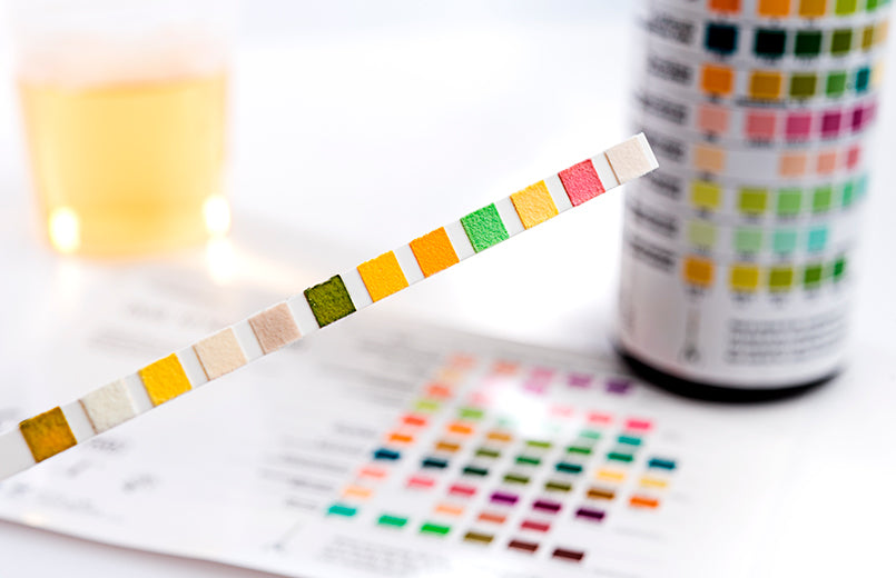 Urine-test-strip-with-test-chart-and-urine-can-in-the-background