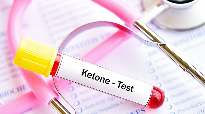 ketogenic-diet-reverses-dementia