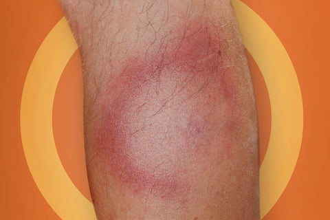 lyme disease symptoms erythema migrans