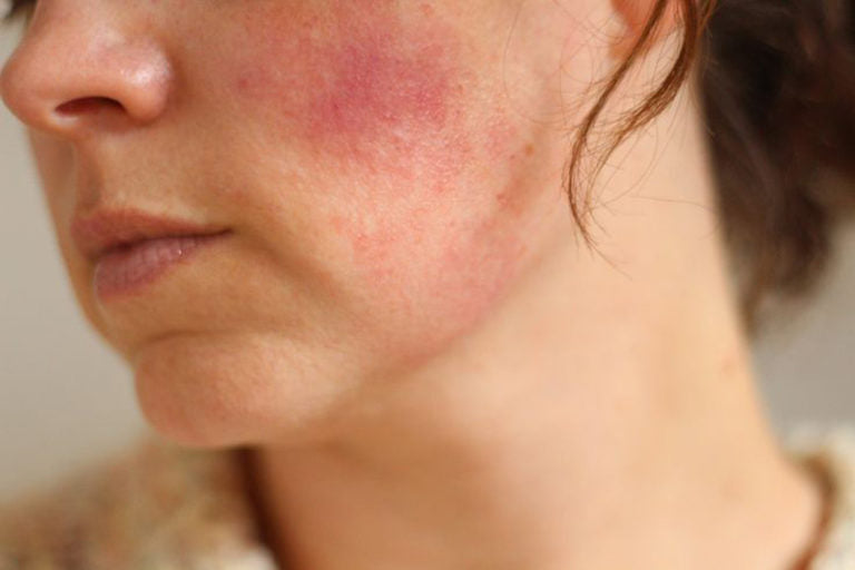 Acne Rosacea And Psoriasis