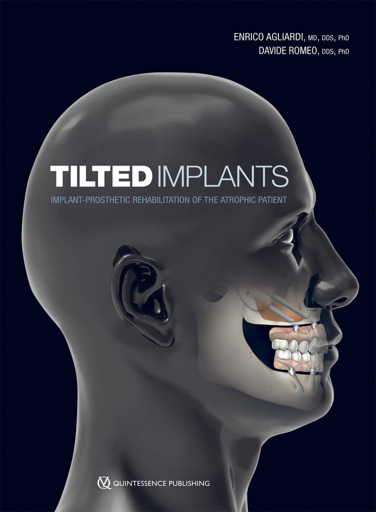 Tilted Implants