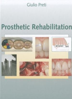 Prosthetic Rehabilitation vol.1