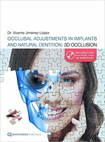 Occlusal Adjustments in Implant