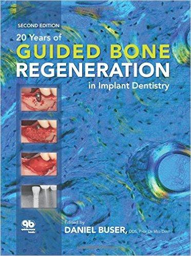 20 Years of Guided Bone Regeneration in