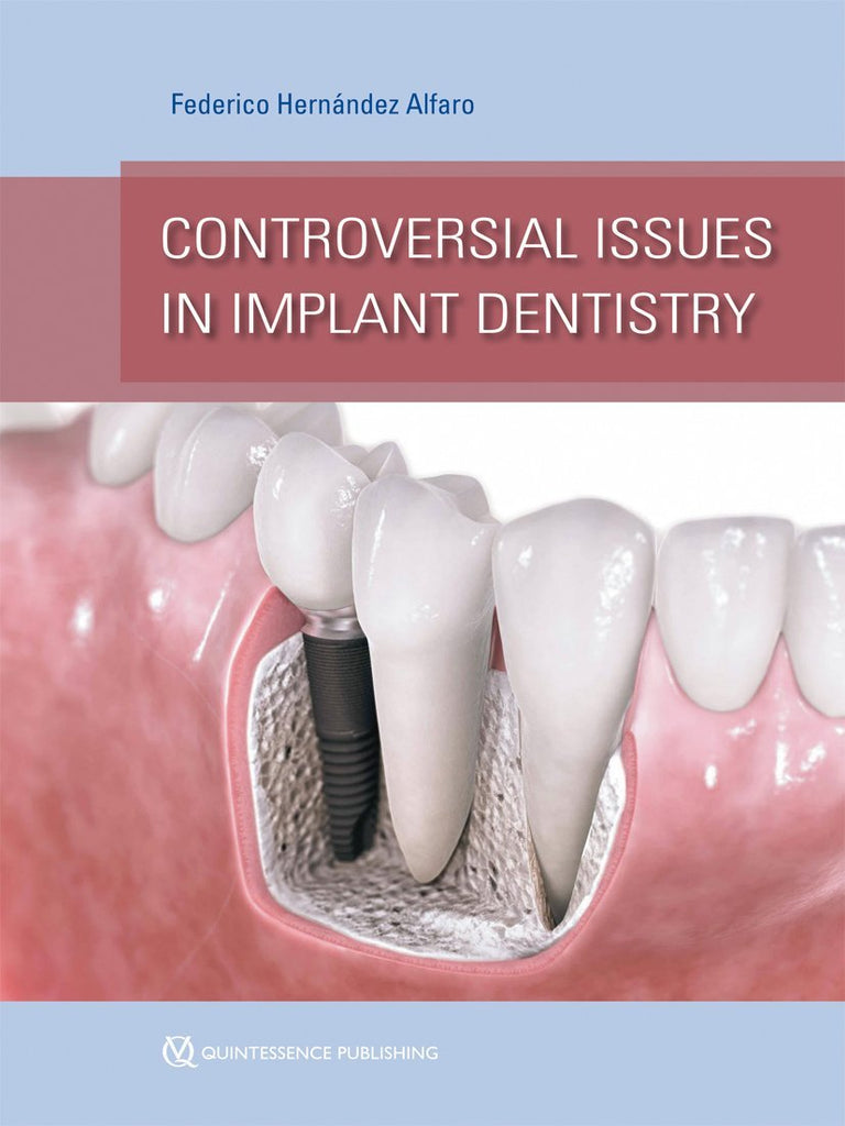 Controversial Issues in Implant Dentistry