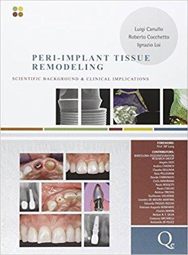 Peri-Implant Tissue Remodeling