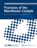 Fractures of the Mandibular Condyle