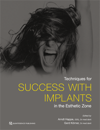 Techniques for Success with Implants in the Esthetic Zone