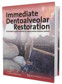 Immediate Dentoalveolar Restoration