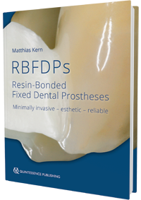 RBFDPs - Resin-Bonded Fixed Dental Prostheses Minimally invasive - esthetic - reliable