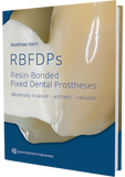 RBFDPs - Resin-Bonded Fixed Dental Prostheses