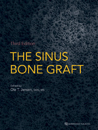 The Sinus Bone Graft