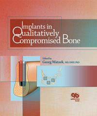 Implants in Qualitatively Compromised Bone