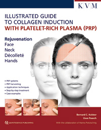 Illustrated Guide to Collagen Induction with Platelet-Rich Plasma (PRP) KVM