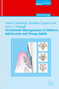 Periodontal Management of Children, Adolescents and Young Adults
