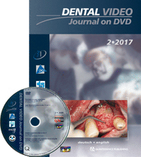 Dental Video Journal 2/2017
