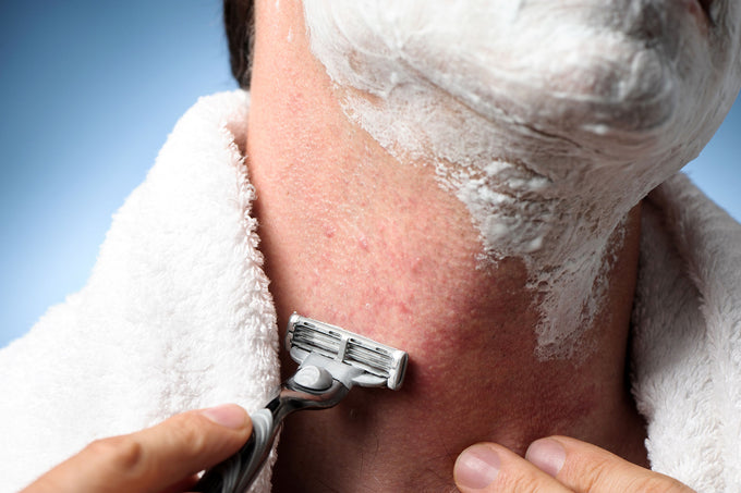 8 Tips on How to Get Rid of Razor Burn and Razor Rash